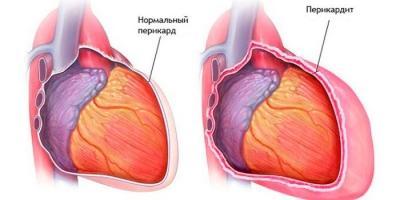 26 причин, которые могут вызвать боль в груди